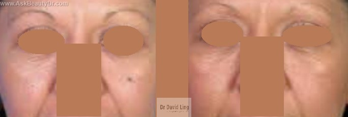 Surgical Mole Removal Without Scar