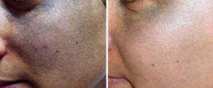 Nevus Ota Treatment: Normally after a full course of treatment, the result is permanent. Note that laser is the only mode of treatment.