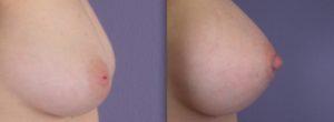 Nipple Reduction Surgery: Shortening and decreased diameter of the nipple