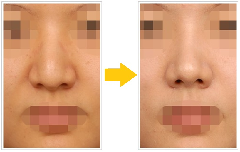 Nose Hump: A nose hump can be hump over back or sides of meeting point of nasal bones, alar cartilages and nasal septum. It gives camel back appearance or a big belly of sort at mid point of the nose bridge.