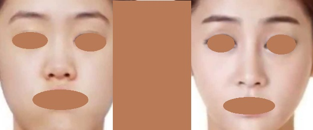 Rhinoplasty Side View, Evidently Perfectly Longer Nasal Bridge & Well Projected Refined Tip Now. Nostrils Covered. Good Feng Shui & aesthetically pleasing.