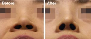 Nose Job Hottest trends: The trend for the nose comes to the proprietary customized design, of the nose in a holistic manner that suit the requirement of each and every client's demand and overall aesthetic value.