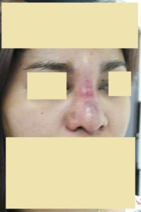 Nose Silicone Injection: it cause broad bulky elephant nose, with inflammation, infection, disfigurement, irregular surface & granuloma formation.