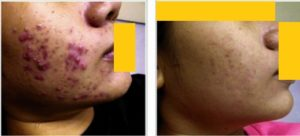 Isotretinoin: Indication for isotretinoin/what it can treat? Isotretinoin is mainly used to treat severe or persistent or scarring acne. It is occasionally used to treat other conditions: 1. Severe folliculitis. An inflammation of the hair shaft or follicle 2. Rosacea, basic pathology lies in the skin 3. Hidradenitis suppurativa, an infection causing pus formation