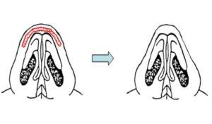 Round Nose Tip