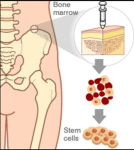 Stem Cell For Baldness: bone marrow stem cell is effective to treat baldness