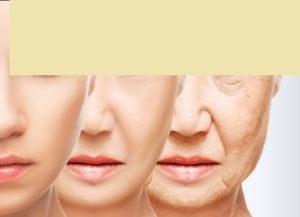 Sagging Skin: Face sagging during aging process.