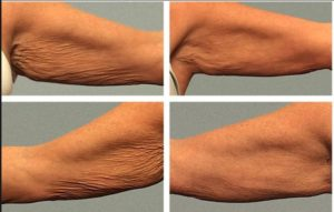 Sagging Skin: Arm sagging during aging process causing flabby arm appearance.