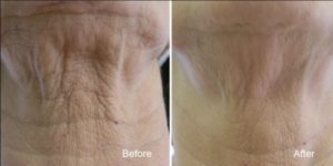 Sagging Skin: Neck sagging during aging process causing turkey neck appearance.