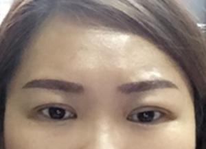 Double Eyelid of East Asian