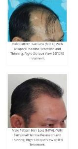 Stem Cell Therapy For Baldness: best chance to restore the crowning glory