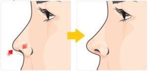 Short Columella Nose