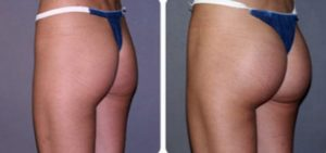 Silicone Buttocks: Beautiful looking during initial period before complication sets in.