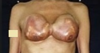 Silicone Breast Injection: Distorted tissue due to inflammation and granuloma formation.