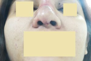 Silicone Removal Surgery: The best solution to restore to former glory.