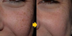 Freckle Treatment: Treatment of brown marks Use sunblock. Use cream. Chemical peel. Cryotherapy Laser 532nm. Laser 1064 nm. Other lasers: •Carbon dioxide laser and • Erbium:YAG lasers. • A fractional laser Intense pulsed light