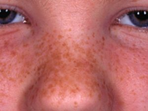 Skin Freckle: Features/ sign of skin freckles are: small size, few mm at most flat and smooth texture brown marks discoloration pigmentation disorder arising on the face and other sun exposed areas, such as back, arm, leg, especially for sunbather They are most often seen in fair skinned people, especially those with red hair, the Caucasian, fairer Asian but also, they are an inherited characteristic that sometimes affects darker skin types as well.