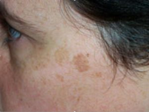 Skin Lentigines: Features/sign of lentigines Color intensity is dark brown, more than freckle color density The lesion is mostly flat are larger and more defined than freckles. Often may measure more than 1 cm. The edge is well defined. They are most often found on exposed part to the sun such as the face and hands, but also on trunk and lower limb for those sunbath regularly and