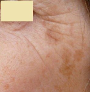 Skin Pigmentation: This is a classic problem of a case of solar lentigens over the cheek.
