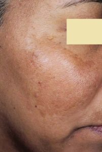 Skin Pigmentation: This is a classic problem of a case of melasma over the cheek.
