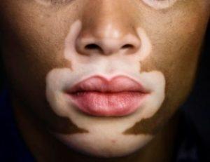 Skin Pigmentation: The problem of hypopigmentation, vitiligo.