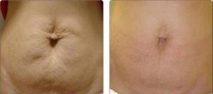 Sagging Skin: Abdomen skin sagging due to weight loss and aging.