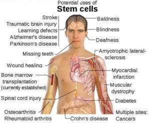Stem Cell Medical Treatment: when all fails, this is the ONLY hope.