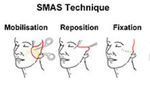 Face Lift: The technique of a SMAS face lift, consisting of first mobilization, repositioning and finally fixation. SMAS is better for re-positioning the platysma.