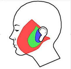 Face Lift: Blue represent the incision in the skin only face lift. Green represent the S-lift. Red is the extensive undermining done in several face lift techniques.