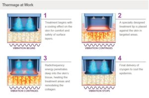 Thermage Skin Tightening Science and principle Thermage treatment procedure is all about energy. It is the focusing of radiofrequency energy to jump start the body's own natural renewal process. It is the transmitting and changing of RF into useful heat energy that finally cook to denature the collagen, to activate renewal process. It is about the conversion of one energy into another and deposited at the right place we wanted.