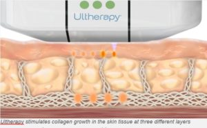 Ulthera Ultraosund: The principle: Safe Ultrasound. No Surgery Ultherapy harnesses the power of ultrasound to bring about its desired effect. It can transform the brow, chin, neck and chest. Ultrasound, of course, has been used safely throughout the medical field for a long time. It has been more than 50 years. The Ultherapy has been established as safe and effective in clinical studies and in over half a million treatments done worldwide, and is still counting.