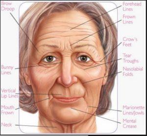 Wrinkle Lines: Dynamic & permanent wrinkle lines
