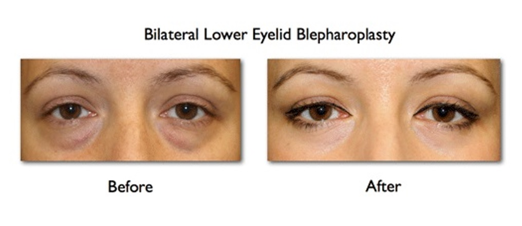 Eye Bag Operation Before After
