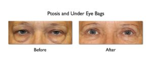 Eye Bag Remedy: Lower Blepharoplasty