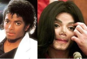 Silicone Injection Removal: Michael Jackson before after photos.