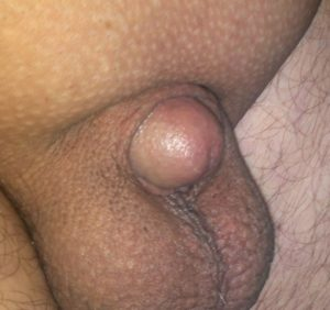 Micro Penis: Shorter than 2.75 inches in an erect state.