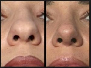 Nose Tip Refinement: Like a carpenter chiseling out excess wood from the block to the desired shape and figures, so is the surgeon doing the same thing to the nose tip. Taking out excess fibro-fatty tissue, free, mobilize, position and fix it for the desired shape. Patch in tissue, usually cartilages from the ear, rib or septum to heighten certain area if necessary.