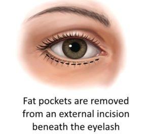 Eye Bag Remedy: Trans Cutaneous Blepharoplasty