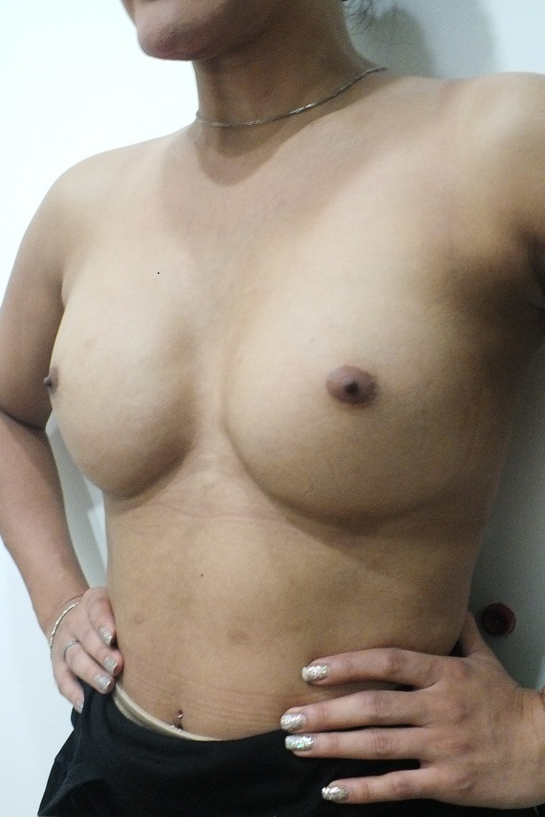 Transsexual men growing breasts — pic 5